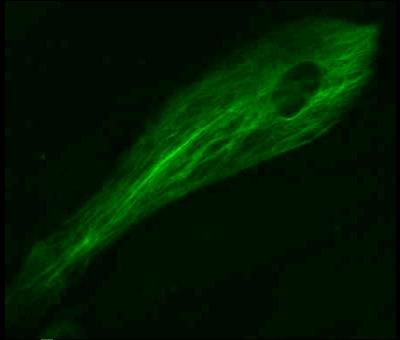 LentiBrite GFP-Vimentin primary cells.