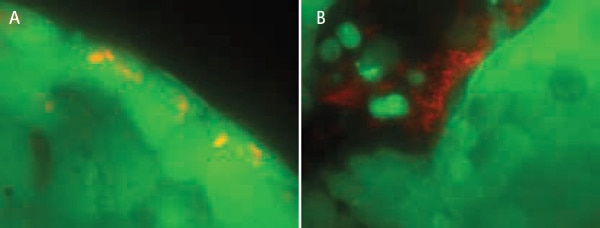 Views of (A) an invasive strain and (B) a non-invasive strain of E. coli after exposure to human HT-29 cells, washout, and perfusion culture. Bacteria expressed mCherry, and HT-29 cells stained with Calcein AM. Panel (A) was acquired with a 100X objective lens, and panel (B) was acquired with a 60X objective lens.
