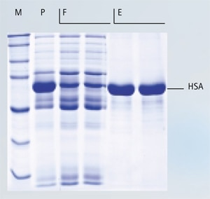 Efficient removal of albumin from human serum samples
