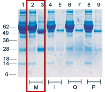 Merck:/Freestyle/BI-Bioscience/PSP/PSP-images/purification_magbeads_blot.jpg