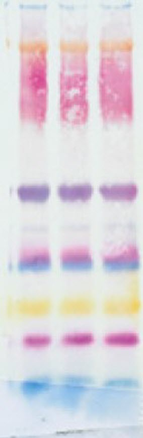 Effect of air bubbles between gel and membrane during Western blot transfer step
