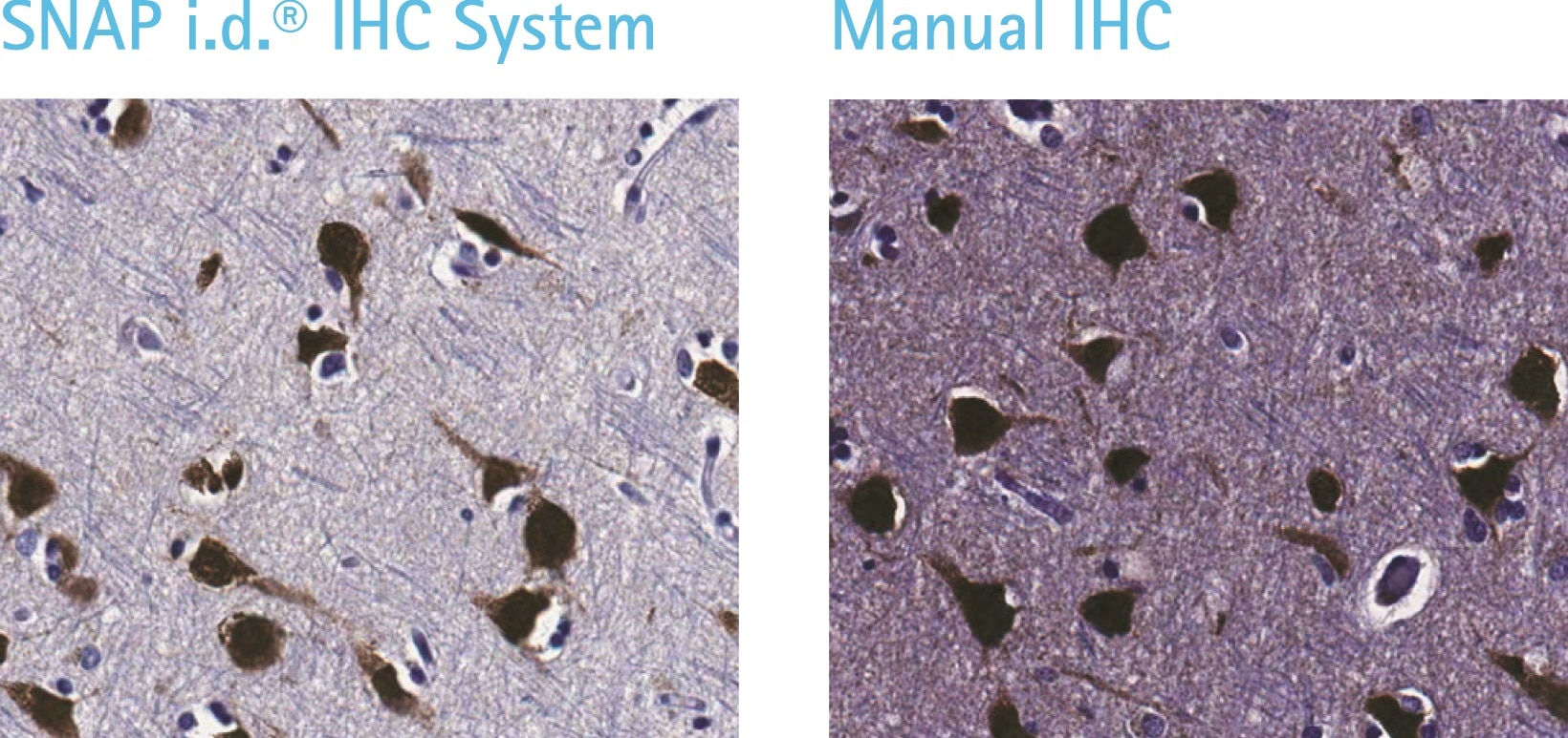 Detection of NeuN in human cerebral cortex (FFPE): SNAP i.d.® 2.0 IHC System (left) vs. standard manual IHC protocol (right).